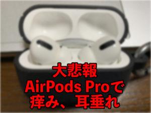 【大悲報】AirPods Proを付けると耳がかゆい【耳垂れ】